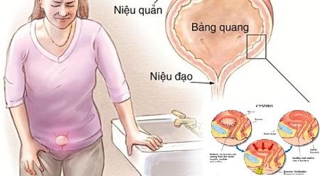Địa chỉ chữa viêm niệu đạo ở đâu tốt tại Hà Nội