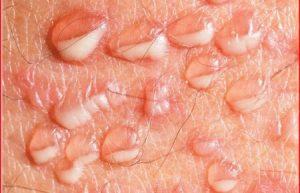 Triệu chứng mụn rộp sinh dục thường xuất hiện như thế nào