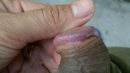 Chuỗi hạt ngọc dương vật là gì