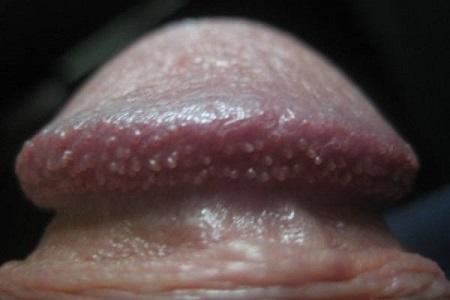 Đầu dương vật nổi mụn trắng là dấu hiệu của bệnh gì