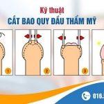 Cắt bao quy đầu tại phòng khám Nam học Hà Nội 52 Nguyễn Trãi