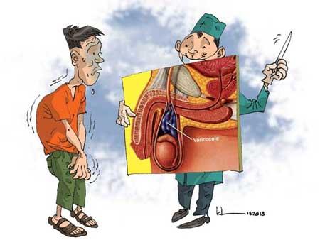 Điều trị giãn tĩnh mạch thừng tinh