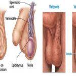 Hình ảnh giãn tĩnh mạch thừng tinh ở nam giới như thế nào