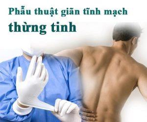 Địa chỉ phẫu thuật giãn tĩnh mạch thừng tinh ở đâu tốt nhất Hà Nội