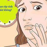 Giải đáp thắc mắc: Mụn rộp sinh dục có chữa được không ?