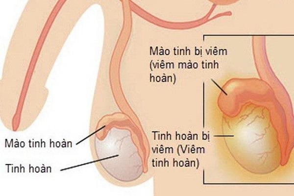 Quan hệ khi bị viêm tinh hoàn - ẩn chứa nhiều hệ lụy khôn lường