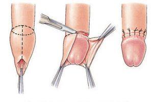 Tìm hiểu về phương pháp cắt bao quy đầu
